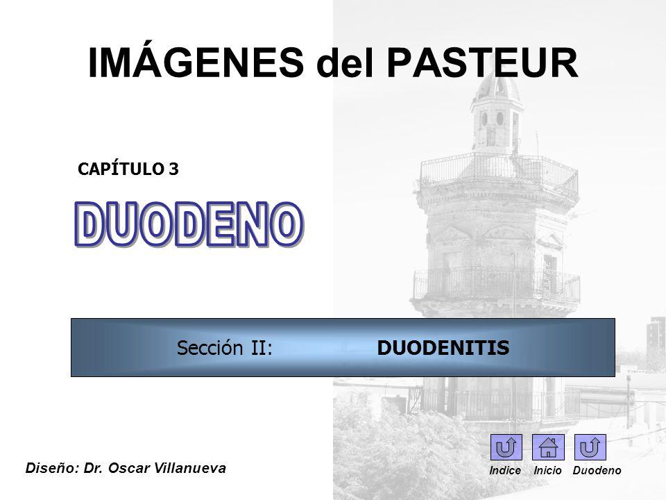 IMÁGENES del PASTEUR Diseño: Dr. Oscar Villanueva CAPÍTULO 3 Sección II: DUODENITIS Indice Inicio Duodeno