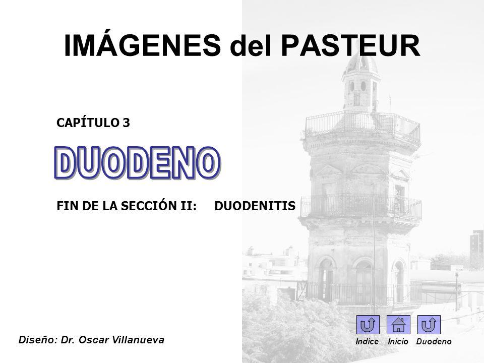 IMÁGENES del PASTEUR Diseño: Dr. Oscar Villanueva CAPÍTULO 3 FIN DE LA SECCIÓN II: DUODENITIS Indice Inicio Duodeno