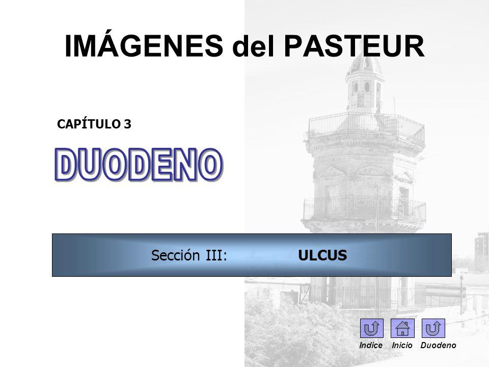 IMÁGENES del PASTEUR CAPÍTULO 3 Sección III: ULCUS Indice Inicio Duodeno