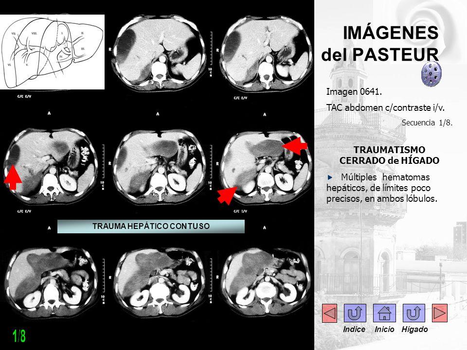 IMÁGENES del PASTEUR Imagen 0641. TAC abdomen c/contraste i/v. Secuencia 1/8. TRAUMATISMO CERRADO de HÍGADO Múltiples hematomas hepáticos, de límites