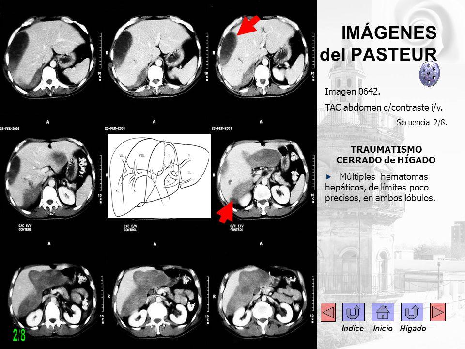 IMÁGENES del PASTEUR Imagen 0642. TAC abdomen c/contraste i/v. Secuencia 2/8. TRAUMATISMO CERRADO de HÍGADO Múltiples hematomas hepáticos, de límites