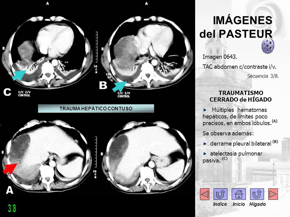 IMÁGENES del PASTEUR Imagen 0643. TAC abdomen c/contraste i/v. Secuencia 3/8. TRAUMATISMO CERRADO de HÍGADO Múltiples hematomas hepáticos, de límites