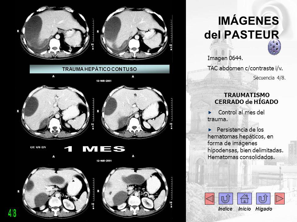 IMÁGENES del PASTEUR Imagen 0644. TAC abdomen c/contraste i/v. Secuencia 4/8. TRAUMATISMO CERRADO de HÍGADO Control al mes del trauma. Persistencia de