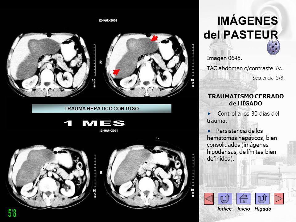 IMÁGENES del PASTEUR Imagen 0645. TAC abdomen c/contraste i/v. Secuencia 5/8. TRAUMATISMO CERRADO de HÍGADO Control a los 30 días del trauma. Persiste
