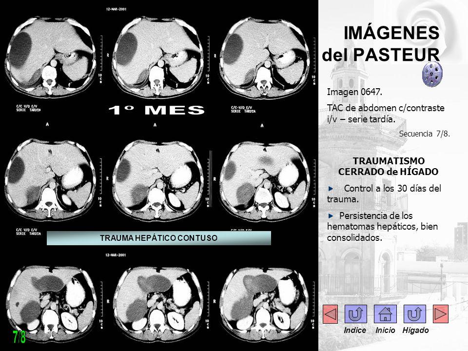 IMÁGENES del PASTEUR Imagen 0647. TAC de abdomen c/contraste i/v – serie tardía. Secuencia 7/8. TRAUMATISMO CERRADO de HÍGADO Control a los 30 días de