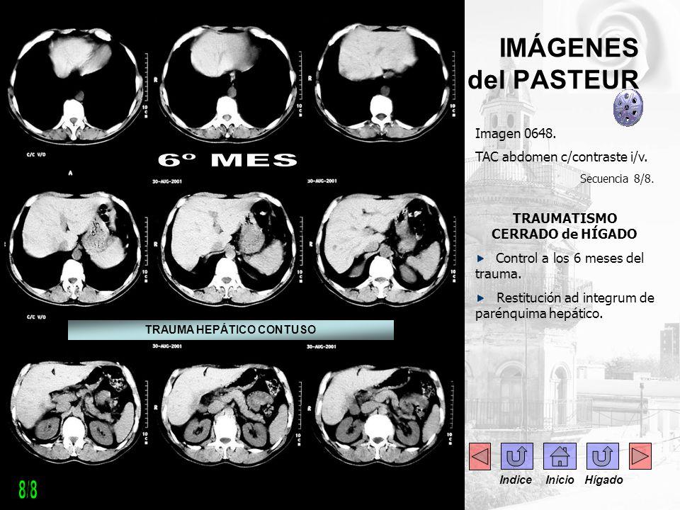 IMÁGENES del PASTEUR Imagen 0648. TAC abdomen c/contraste i/v. Secuencia 8/8. TRAUMATISMO CERRADO de HÍGADO Control a los 6 meses del trauma. Restituc