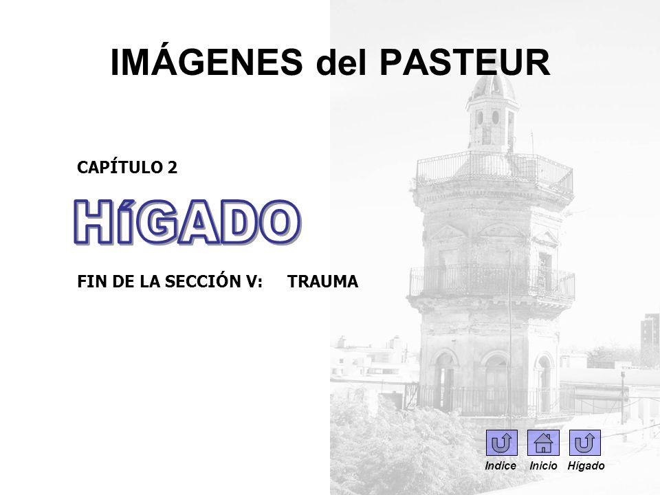 IMÁGENES del PASTEUR CAPÍTULO 2 FIN DE LA SECCIÓN V: TRAUMA Indice Inicio Hígado
