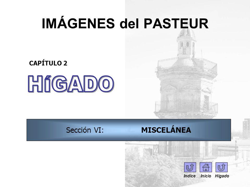 IMÁGENES del PASTEUR CAPÍTULO 2 Sección VI: MISCELÁNEA Indice Inicio Hígado