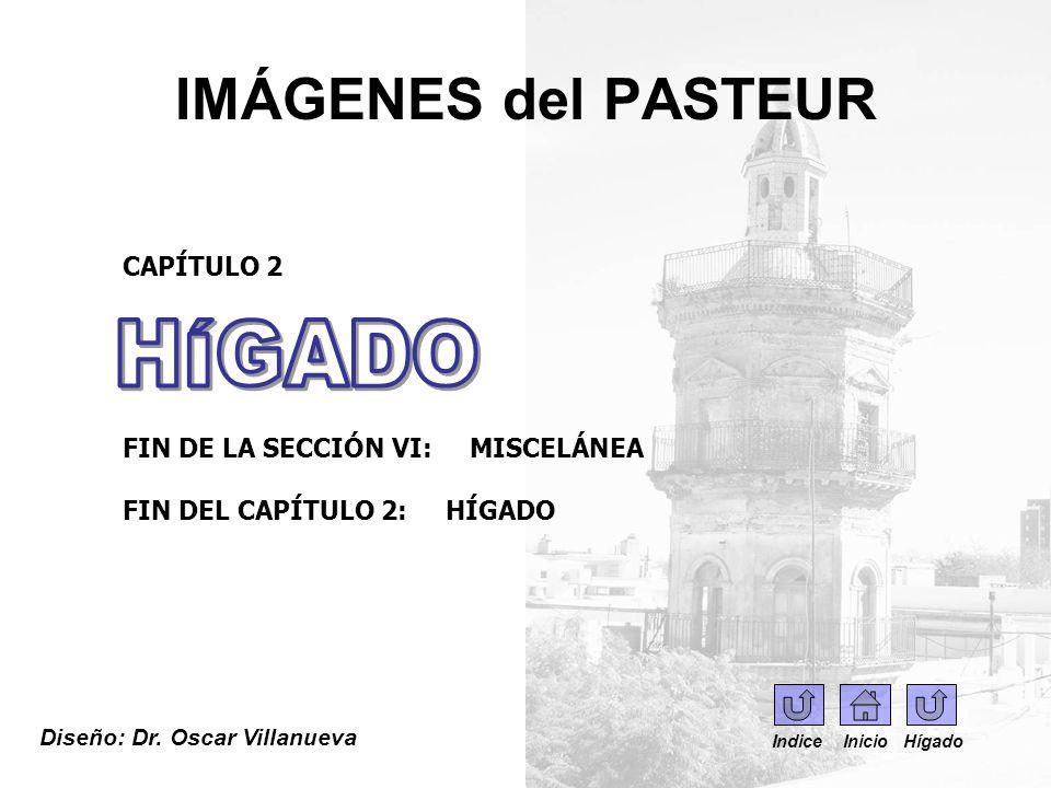 IMÁGENES del PASTEUR Diseño: Dr. Oscar Villanueva CAPÍTULO 2 FIN DE LA SECCIÓN VI: MISCELÁNEA FIN DEL CAPÍTULO 2: HÍGADO Indice Inicio Hígado