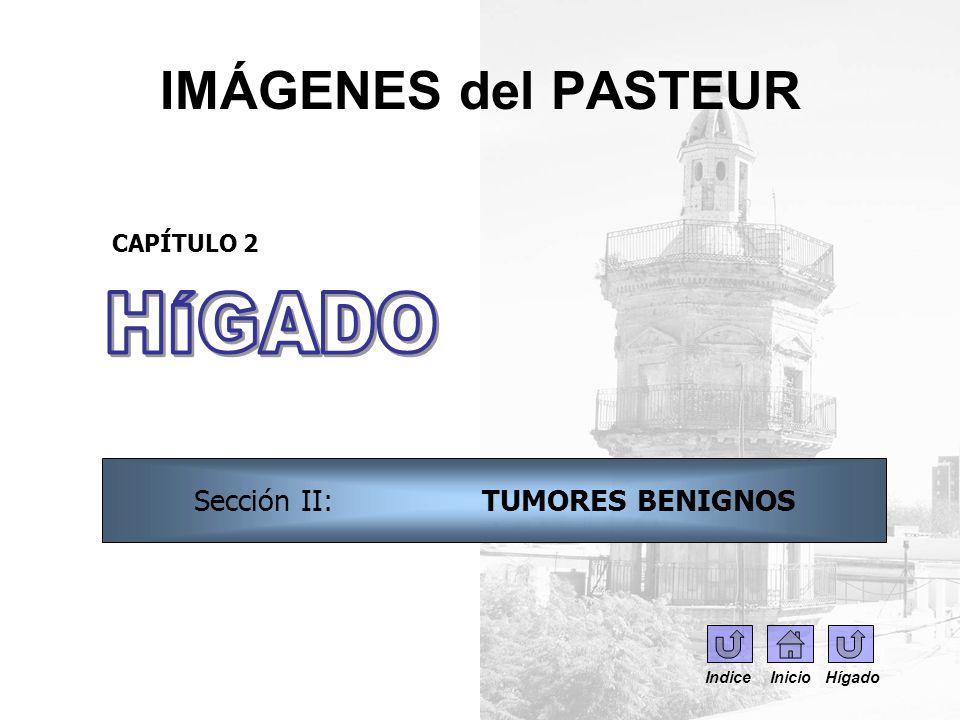 IMÁGENES del PASTEUR CAPÍTULO 2 Sección II: TUMORES BENIGNOS Indice Inicio Hígado