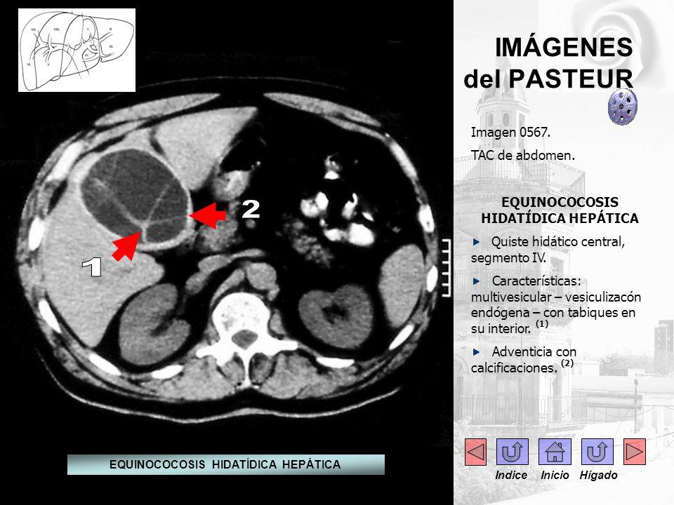 IMÁGENES del PASTEUR Imagen 0567. TAC de abdomen. EQUINOCOCOSIS HIDATÍDICA HEPÁTICA Quiste hidático central, segmento IV. Características: multivesicu