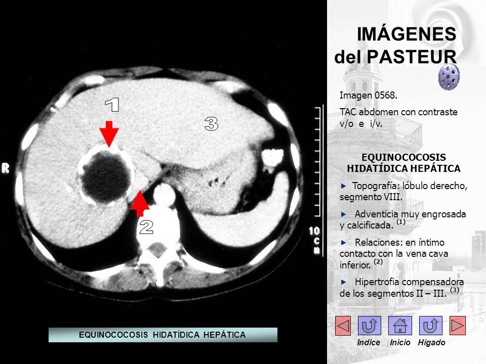 IMÁGENES del PASTEUR Imagen 0568. TAC abdomen con contraste v/o e i/v. EQUINOCOCOSIS HIDATÍDICA HEPÁTICA Topografía: lóbulo derecho, segmento VIII. Ad