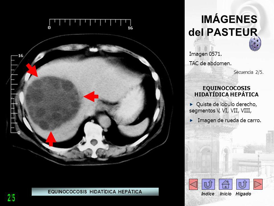IMÁGENES del PASTEUR Imagen 0571. TAC de abdomen. Secuencia 2/5. EQUINOCOCOSIS HIDATÍDICA HEPÁTICA Quiste de lóbulo derecho, segmentos V, VI, VII, VII