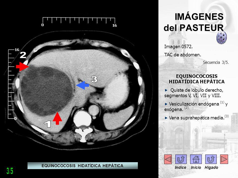 IMÁGENES del PASTEUR Imagen 0572. TAC de abdomen. Secuencia 3/5. EQUINOCOCOSIS HIDATÍDICA HEPÁTICA Quiste de lóbulo derecho, segmentos V, VI, VII y VI