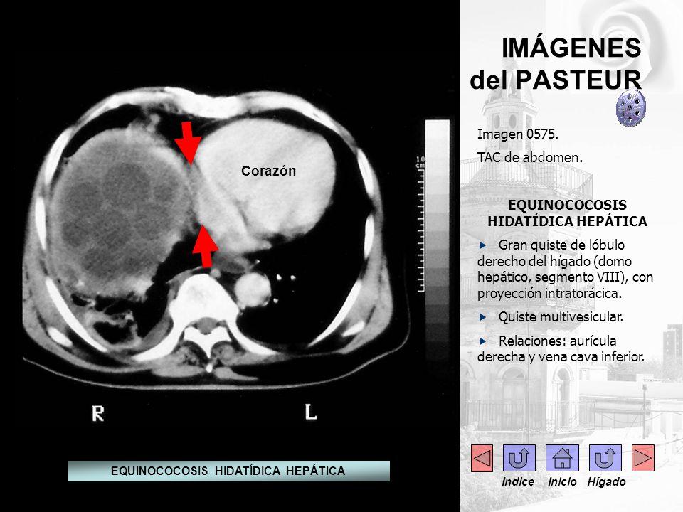 IMÁGENES del PASTEUR Imagen 0575. TAC de abdomen. EQUINOCOCOSIS HIDATÍDICA HEPÁTICA Gran quiste de lóbulo derecho del hígado (domo hepático, segmento
