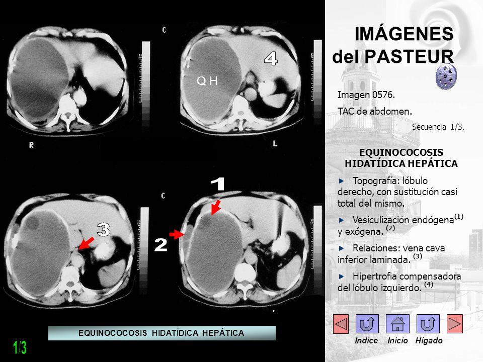 IMÁGENES del PASTEUR Imagen 0576. TAC de abdomen. Secuencia 1/3. EQUINOCOCOSIS HIDATÍDICA HEPÁTICA Topografía: lóbulo derecho, con sustitución casi to