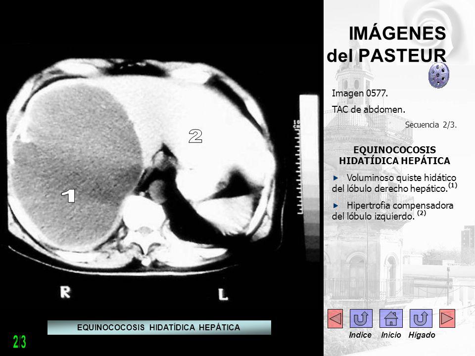 IMÁGENES del PASTEUR Imagen 0577. TAC de abdomen. Secuencia 2/3. EQUINOCOCOSIS HIDATÍDICA HEPÁTICA Voluminoso quiste hidático del lóbulo derecho hepát