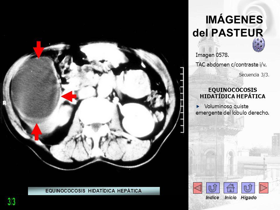 IMÁGENES del PASTEUR Imagen 0578. TAC abdomen c/contraste i/v. Secuencia 3/3. EQUINOCOCOSIS HIDATÍDICA HEPÁTICA Voluminoso quiste emergente del lóbulo