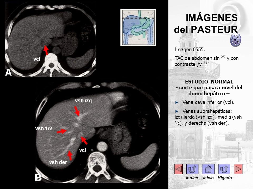 IMÁGENES del PASTEUR CAPÍTULO 2 FIN DE LA SECCIÓN I: ANATOMÍA NORMAL Indice Inicio Hígado