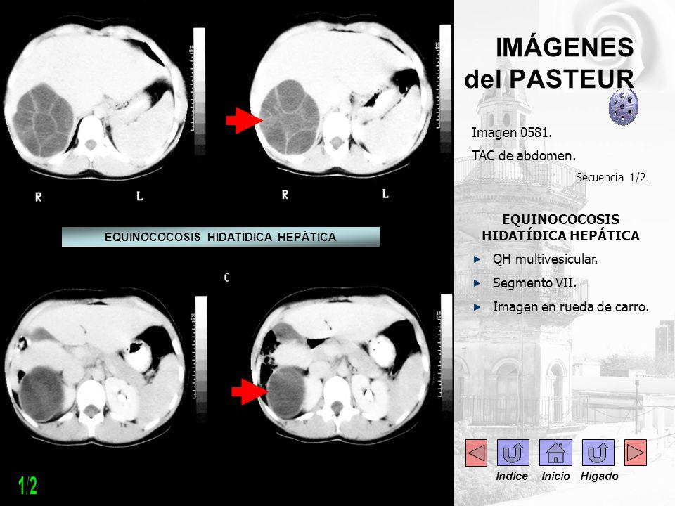 IMÁGENES del PASTEUR Imagen 0581. TAC de abdomen. Secuencia 1/2. EQUINOCOCOSIS HIDATÍDICA HEPÁTICA QH multivesicular. Segmento VII. Imagen en rueda de