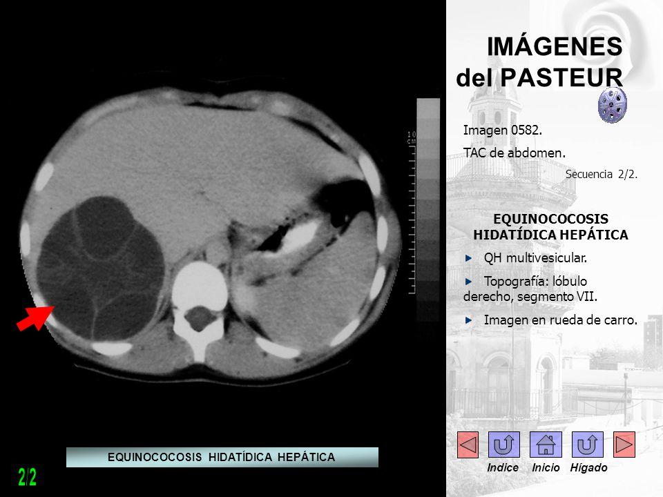 - -- - IMÁGENES del PASTEUR Imagen 0582. TAC de abdomen. Secuencia 2/2. EQUINOCOCOSIS HIDATÍDICA HEPÁTICA QH multivesicular. Topografía: lóbulo derech