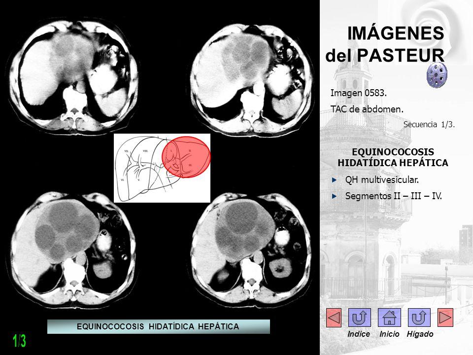 IMÁGENES del PASTEUR Imagen 0583. TAC de abdomen. Secuencia 1/3. EQUINOCOCOSIS HIDATÍDICA HEPÁTICA QH multivesicular. Segmentos II – III – IV. EQUINOC
