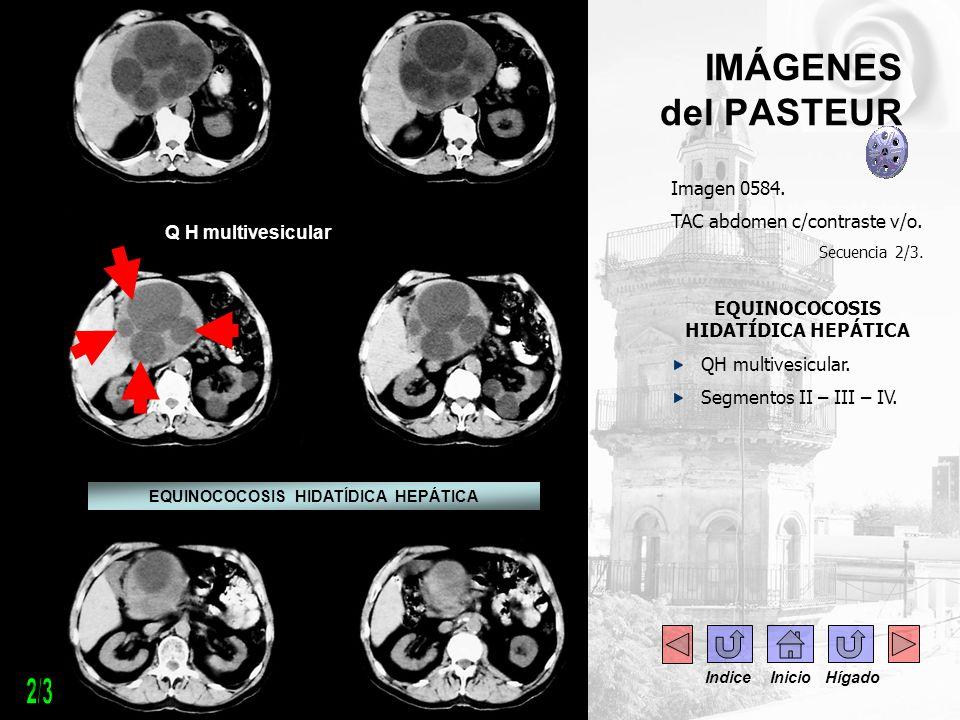 IMÁGENES del PASTEUR Imagen 0584. TAC abdomen c/contraste v/o. Secuencia 2/3. EQUINOCOCOSIS HIDATÍDICA HEPÁTICA QH multivesicular. Segmentos II – III