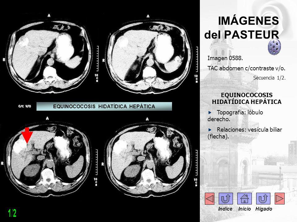- --- - IMÁGENES del PASTEUR Imagen 0588. TAC abdomen c/contraste v/o. Secuencia 1/2. EQUINOCOCOSIS HIDATÍDICA HEPÁTICA Topografía: lóbulo derecho. Re