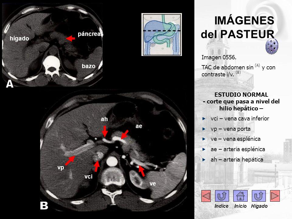 ..- Imagen 0556. TAC de abdomen sin (A) y con contraste i/v. (B) ESTUDIO NORMAL - corte que pasa a nivel del hilio hepático – vci – vena cava inferior