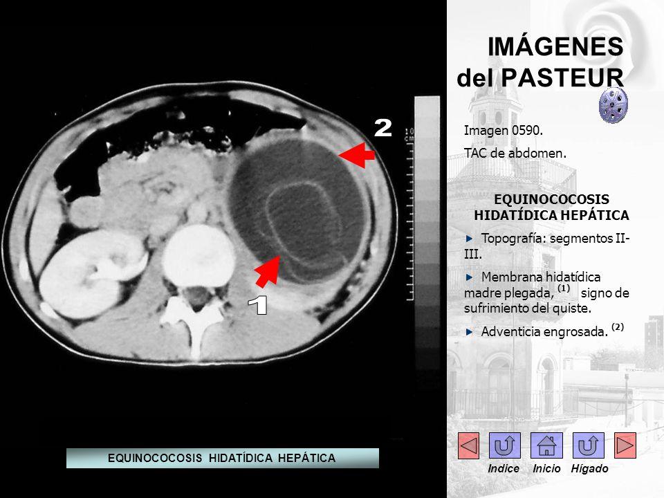 IMÁGENES del PASTEUR Imagen 0590. TAC de abdomen. EQUINOCOCOSIS HIDATÍDICA HEPÁTICA Topografía: segmentos II- III. Membrana hidatídica madre plegada,