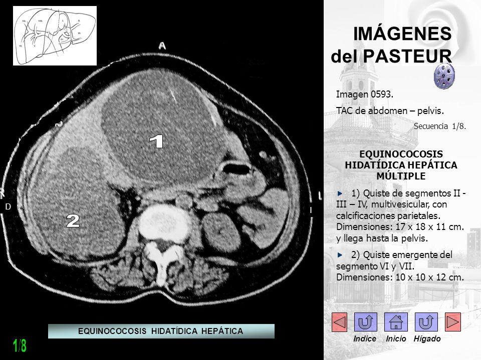 - IMÁGENES del PASTEUR Imagen 0593. TAC de abdomen – pelvis. Secuencia 1/8. EQUINOCOCOSIS HIDATÍDICA HEPÁTICA MÚLTIPLE 1) Quiste de segmentos II - III