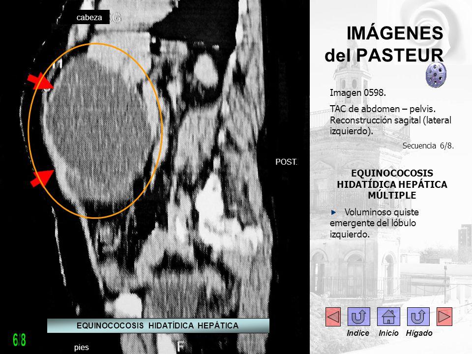 IMÁGENES del PASTEUR Imagen 0598. TAC de abdomen – pelvis. Reconstrucción sagital (lateral izquierdo). Secuencia 6/8. EQUINOCOCOSIS HIDATÍDICA HEPÁTIC