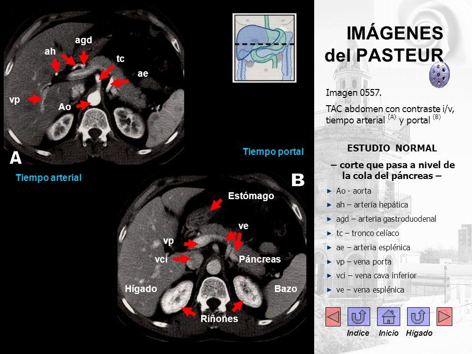 ..- IMÁGENES del PASTEUR Imagen 0557. TAC abdomen con contraste i/v, tiempo arterial (A) y portal (B) ESTUDIO NORMAL – corte que pasa a nivel de la co