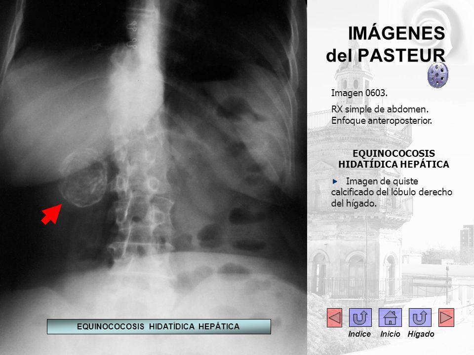 IMÁGENES del PASTEUR Imagen 0603. RX simple de abdomen. Enfoque anteroposterior. EQUINOCOCOSIS HIDATÍDICA HEPÁTICA Imagen de quiste calcificado del ló