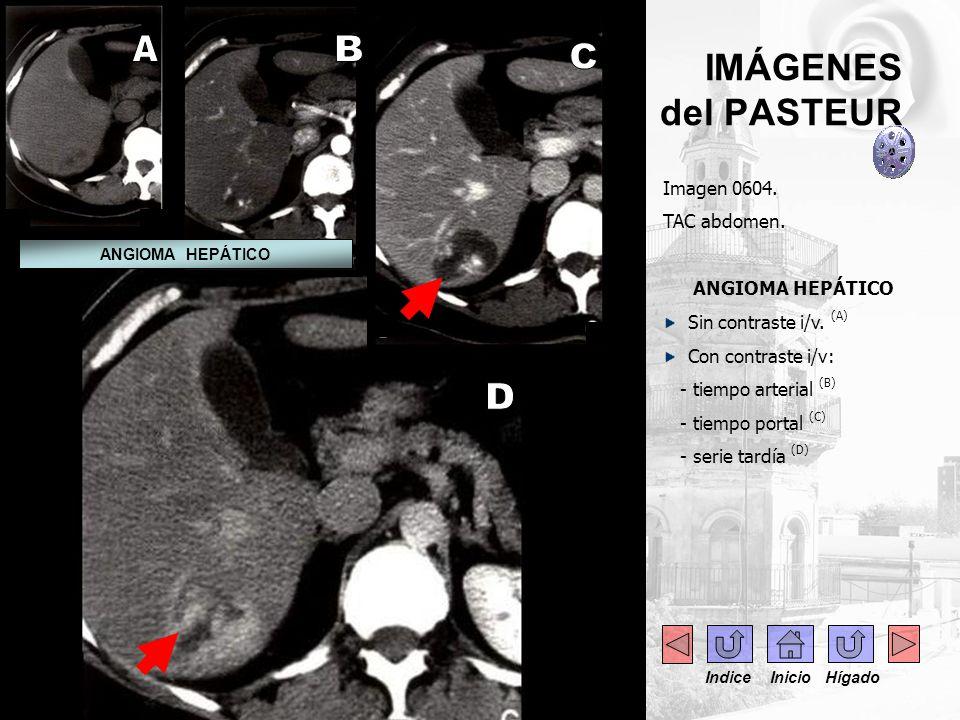 - --- IMÁGENES del PASTEUR Imagen 0604. TAC abdomen. ANGIOMA HEPÁTICO Sin contraste i/v. (A) Con contraste i/v: - tiempo arterial (B) - tiempo portal