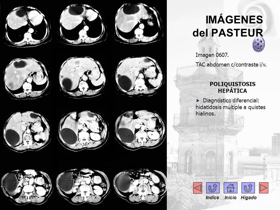 IMÁGENES del PASTEUR Imagen 0607. TAC abdomen c/contraste i/v. POLIQUISTOSIS HEPÁTICA Diagnóstico diferencial: hidatidosis múltiple a quistes hialinos