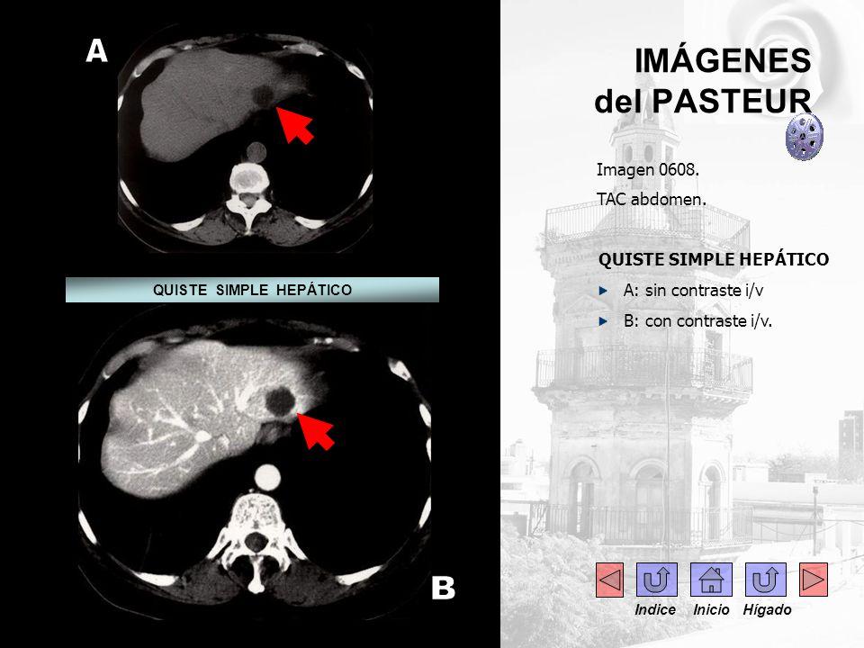 .... IMÁGENES del PASTEUR Imagen 0608. TAC abdomen. QUISTE SIMPLE HEPÁTICO A: sin contraste i/v B: con contraste i/v. QUISTE SIMPLE HEPÁTICO Indice In