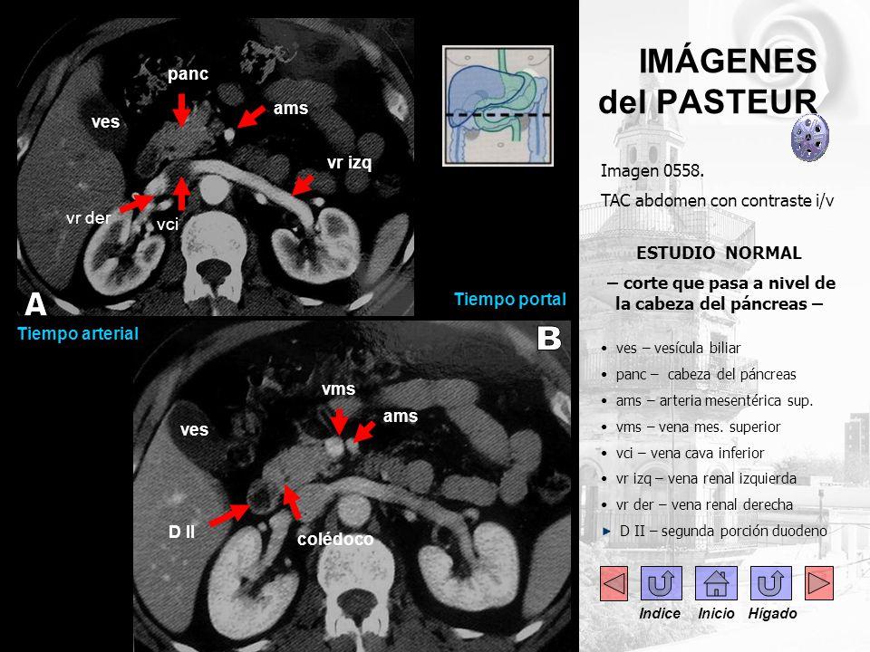 ..- IMÁGENES del PASTEUR Imagen 0558. TAC abdomen con contraste i/v ESTUDIO NORMAL – corte que pasa a nivel de la cabeza del páncreas – ves – vesícula