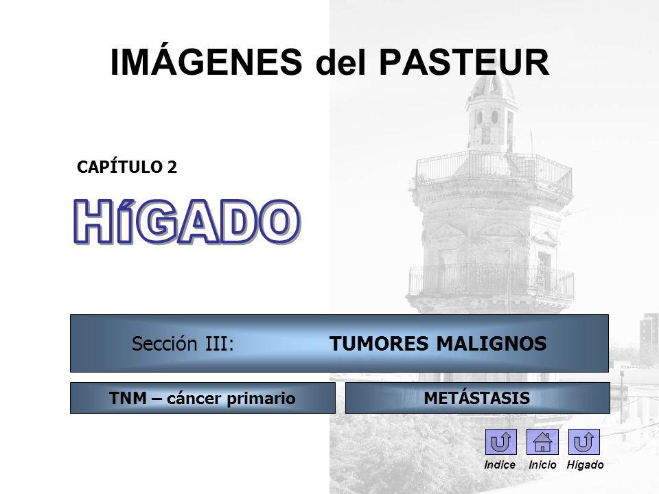 IMÁGENES del PASTEUR CAPÍTULO 2 Sección III: TUMORES MALIGNOS TNM – cáncer primarioMETÁSTASIS Indice Inicio Hígado