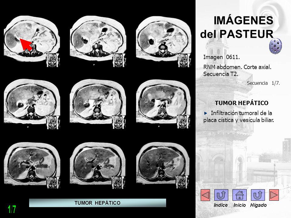 IMÁGENES del PASTEUR Imagen 0611. RNM abdomen. Corte axial. Secuencia T2. Secuencia 1/7. TUMOR HEPÁTICO Infiltración tumoral de la placa cística y ves