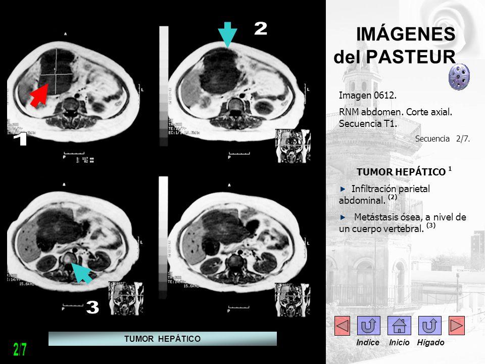 IMÁGENES del PASTEUR Imagen 0612. RNM abdomen. Corte axial. Secuencia T1. Secuencia 2/7. TUMOR HEPÁTICO 1 Infiltración parietal abdominal. (2) Metásta