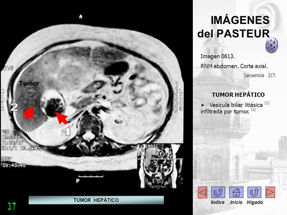 IMÁGENES del PASTEUR Imagen 0613. RNM abdomen. Corte axial. Secuencia 3/7. TUMOR HEPÁTICO Vesícula biliar litiásica (1) infiltrada por tumor. (2) Tumo