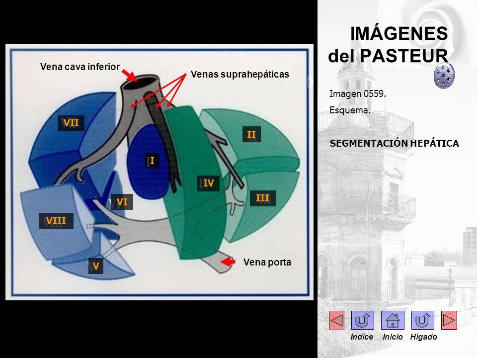 ....IMÁGENES del PASTEUR Imagen 0608. TAC abdomen.