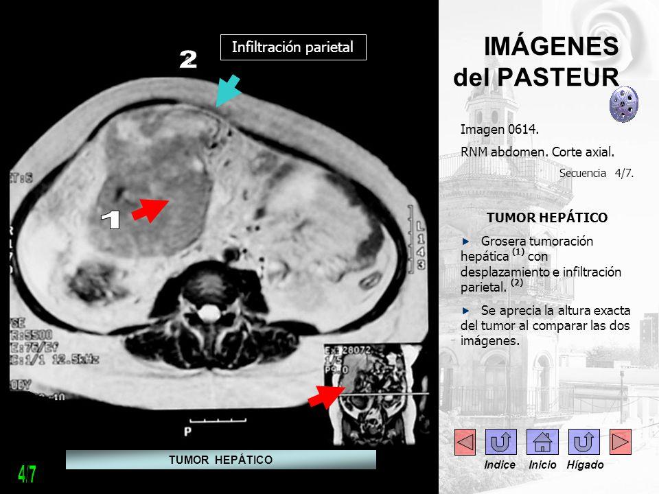 IMÁGENES del PASTEUR Imagen 0614. RNM abdomen. Corte axial. Secuencia 4/7. TUMOR HEPÁTICO Grosera tumoración hepática (1) con desplazamiento e infiltr
