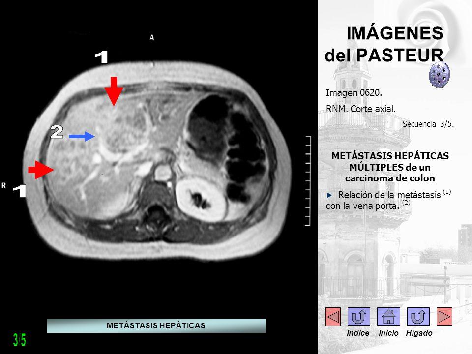 -.-. - -- - IMÁGENES del PASTEUR Imagen 0620. RNM. Corte axial. Secuencia 3/5. METÁSTASIS HEPÁTICAS MÚLTIPLES de un carcinoma de colon Relación de la