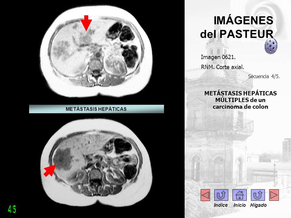 IMÁGENES del PASTEUR Imagen 0621. RNM. Corte axial. Secuencia 4/5. METÁSTASIS HEPÁTICAS MÚLTIPLES de un carcinoma de colon. METÁSTASIS HEPÁTICAS Indic