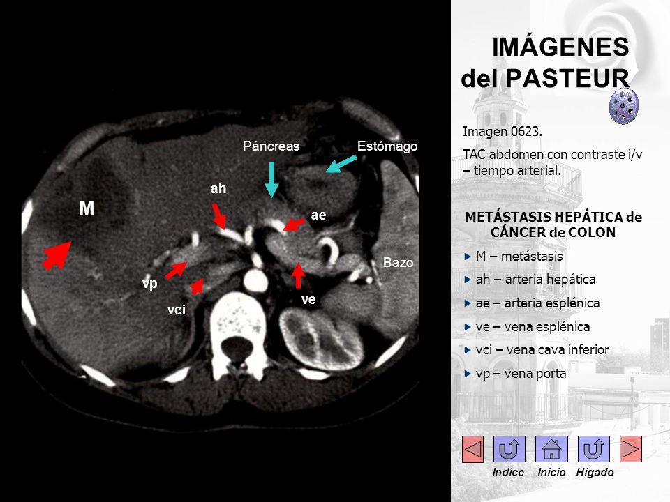- --- IMÁGENES del PASTEUR Imagen 0623. TAC abdomen con contraste i/v – tiempo arterial. METÁSTASIS HEPÁTICA de CÁNCER de COLON M – metástasis ah – ar