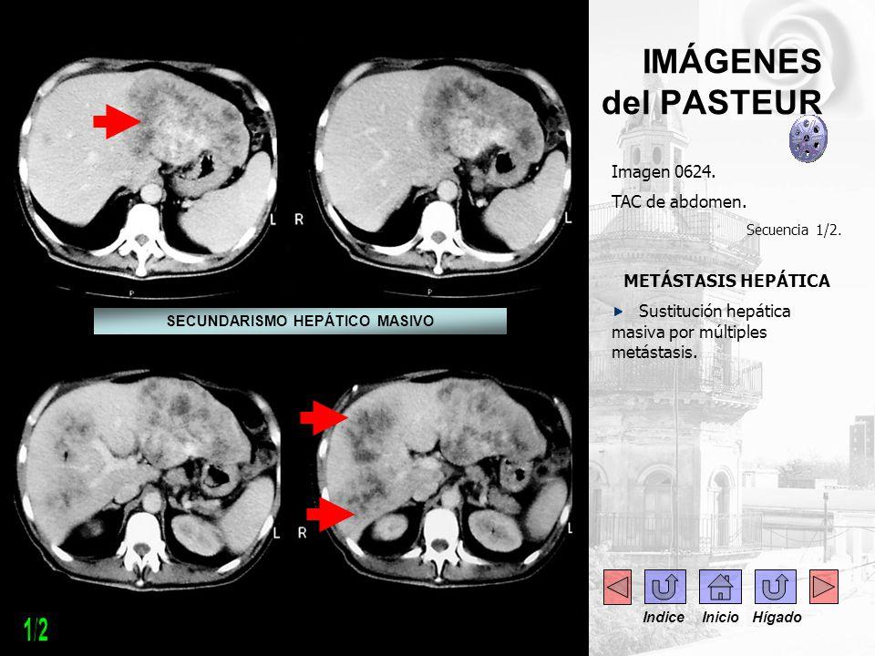 ------ IMÁGENES del PASTEUR Imagen 0624. TAC de abdomen. Secuencia 1/2. METÁSTASIS HEPÁTICA Sustitución hepática masiva por múltiples metástasis. SECU