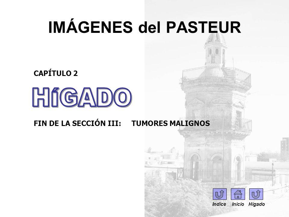 IMÁGENES del PASTEUR CAPÍTULO 2 FIN DE LA SECCIÓN III: TUMORES MALIGNOS Indice Inicio Hígado