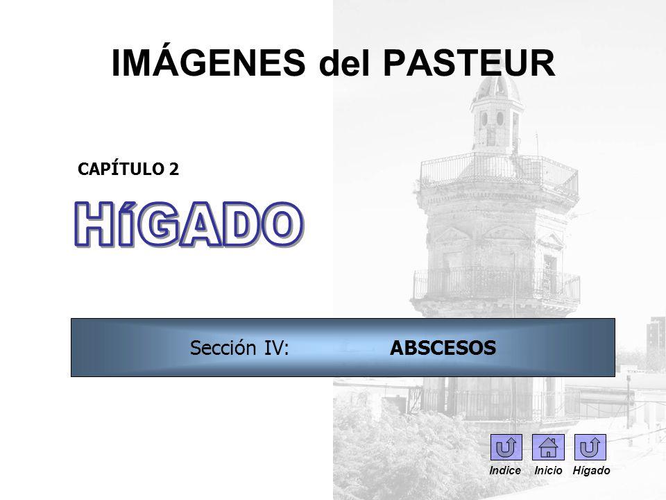 IMÁGENES del PASTEUR CAPÍTULO 2 Sección IV: ABSCESOS Indice Inicio Hígado